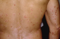 psoriasis4 APA ITU PSORIASIS
