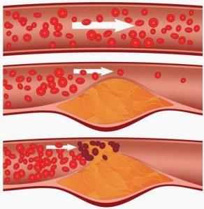 Makanan Organik Yang Dapat Membantu Membersihkan Arteri